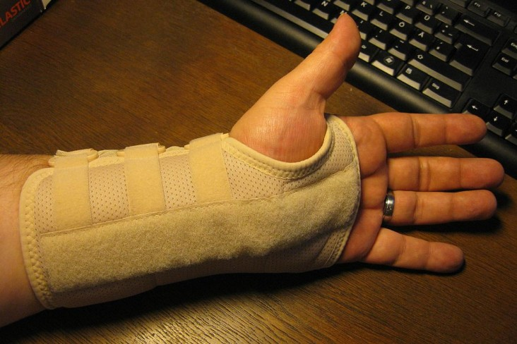 Carpal-Tunnel-Syndrome-and-its-effective-treatments
