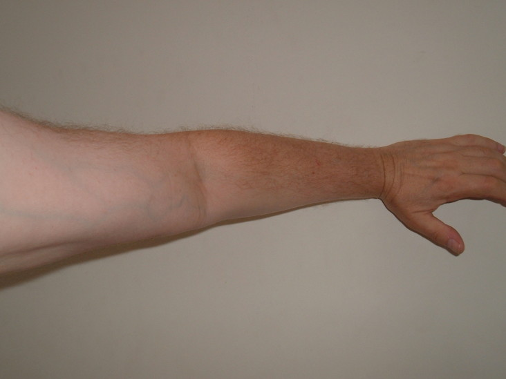 Left-arm-pain-why-an-emergency