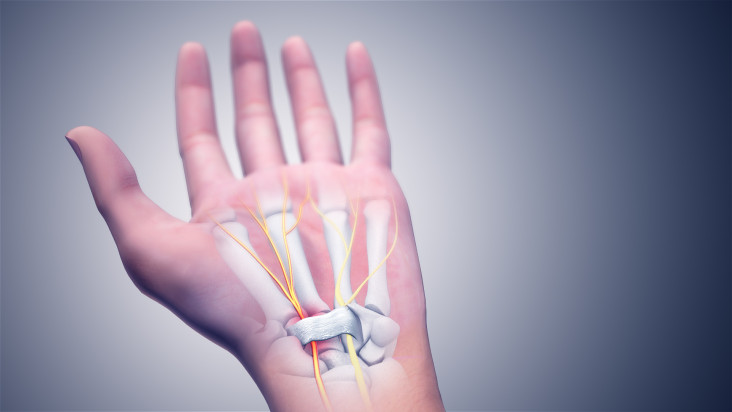CAUSES-AND-TREATMENT-OPTIONS-FOR-CARPAL-TUNNEL-SYNDROME