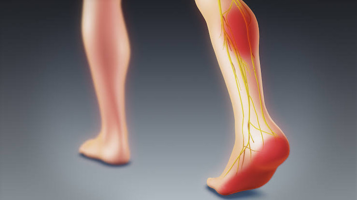 WHAT-CAUSES-SCIATICA-TO-LASTS-LONG