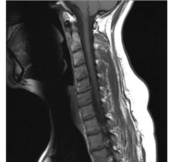 TREATMENTS-GUIDE-FOR-DISC-HERNIATION